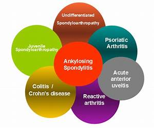 What Are The Spondyloarthropathies