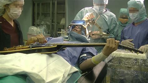 ジストニア 手術