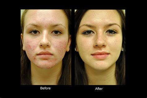 Bellevue Laser and Cosmetic Center | Acne