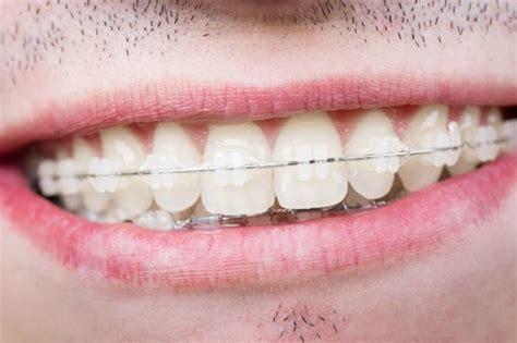 apparecchio interno costo apparecchio denti adulti trovami