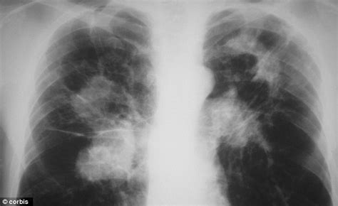 Mother Died Of Tb Along With Newborn Twins After Eating