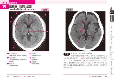 低 酸素 脳症