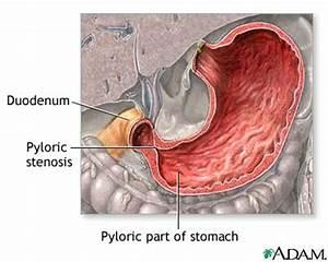 Pyloric stenosis. Causes, symptoms, treatment Pyloric stenosis
