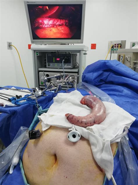 manga gastrica cirugia bariatrica tijuana stop obesity