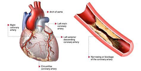 What is Coronary Artery Disease?: CARDIODX®