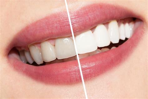 Zähne Bleichen Auf Natürliche Art Und Das Auch Noch Von Zu