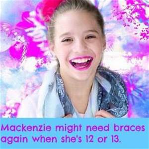 ♡Aldcuties♡ | мacĸenzιe zιegler | Pinterest | Teeth and Braces