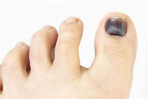 Reader Question  Code 11740 For Drainage Of Toe Nail