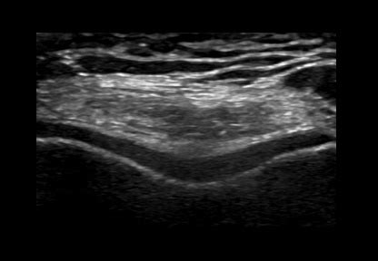Musculoskeletal Ultrasound (MSK) - Suitable Probes   SIFSOF