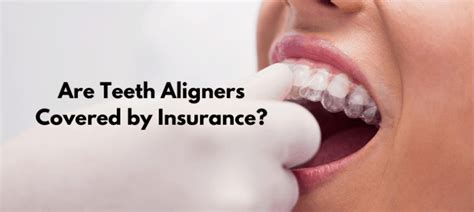 Your policy may cover a portion of what regular braces would cost, and you would pay the difference out of pocket. Are Teeth Aligners Covered by Insurance?   The Teeth Blog