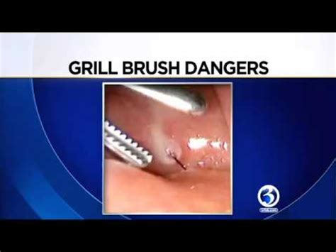 grill brush bristle in throat doctors warn about using wire bristled grill brushes youtube