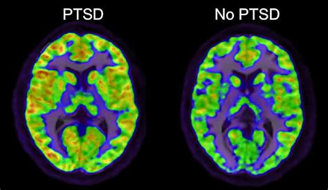 ptsd study identifies potential path  treatment