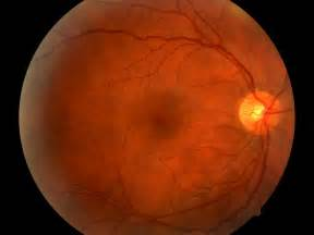 Retinopathy Related Keywords & Suggestions - Diabetic Retinopathy ... Retinopathy