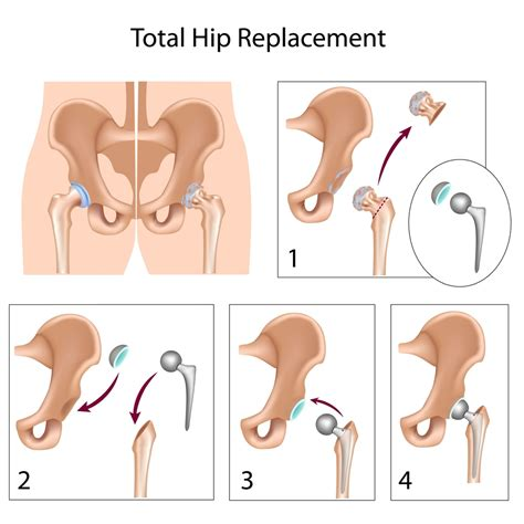 total hip replacement explained