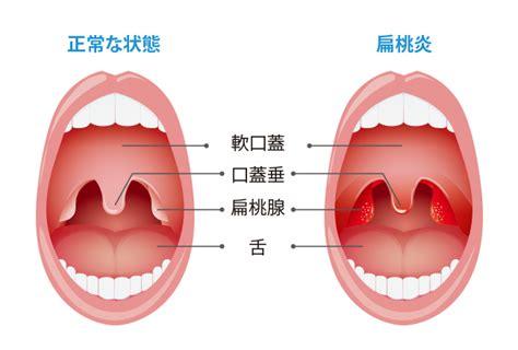 喉 の 痛み