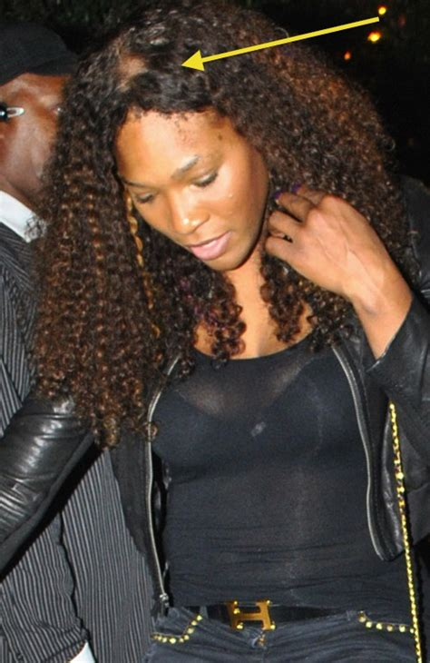 Bad Weave Or A Bald Spot...Introducing Serena Williams