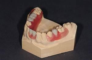 Valplast Prothese Abrechnung : dentallabor gibisch gmbh ~ Themetempest.com Abrechnung