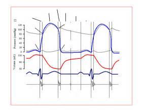 Wiggers Diagram Cardiac Cycle