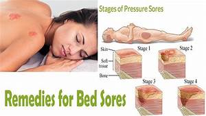 After use this remedies you can cure your bed sores youtube for Bed sore relief