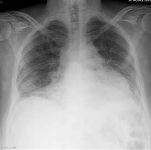 Pericardial effusion | Radiology Case | Radiopaedia.org