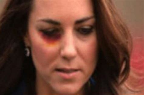 kate middleton eye color kate middleton black eye picture used in sick