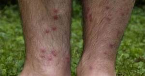 Have You Been Affected By Swimmer's Itch? / Platinum Ponds & Lake Management Greenville SC ... Cercarial Dermatitis