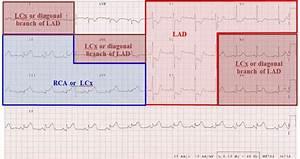 Hunting The Culprit 2  Coronary Artery Anatomy