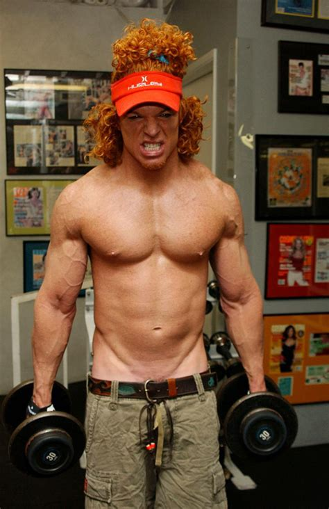 carrot top used synthol in his delts roflmao