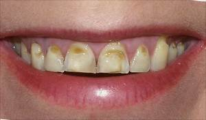 Disorders of Teeth other than Dental Caries ~ Dentistry ...