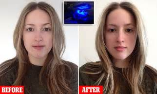 LED treatment using skin-penetrating wavelengths of light