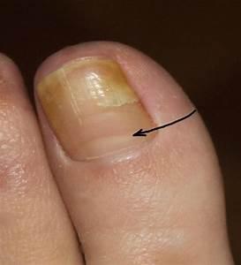 Препараты грибок на ногтях