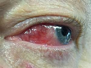 Episcleritis And Scleritis - Ophthalmology Training