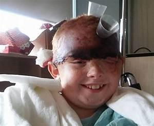 Nebraska girl scalped by carnival ride looks back on freak accident one year later (WARNING ... Malnutrition