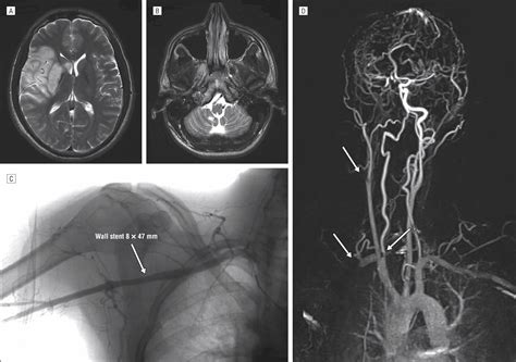 Multiple Cervical Artery Dissection in a Volleyball Player ...
