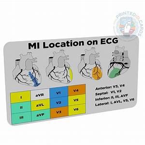 Mi    Stemi Location  Doctor  Nurse  Student  Paramedic  Pocket Reference Card