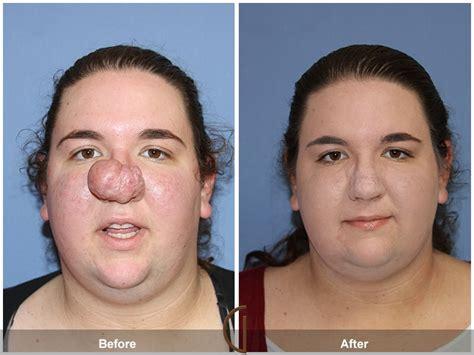 newport beach facial plastic surgeon    womans