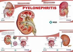 Pyelonephritis  U2013 Anejo