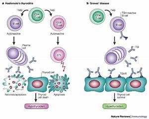 Related Disorders  U2013 Hashimoto U2019s Disease