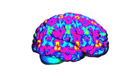 what color is a brain new brain studies show lsd s effects on the brain in