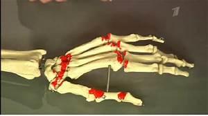 Лечение артрит нижних конечностей народными средствами