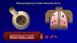 Pulmonary Function Tests  Pft   Lesson 4 - Dlco