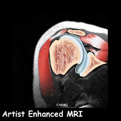 Rotator Cuff Tears | eOrthopod.com