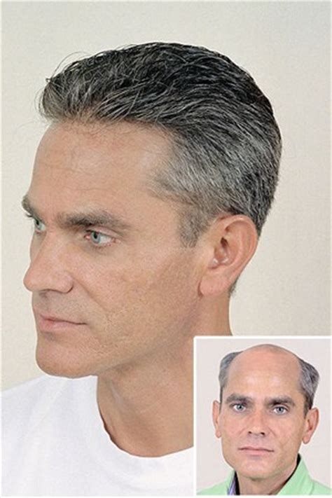Why People May Need To Use A Nonsurgical Hair Replacement. American Travel Insurance Companies. Heating Repair Minneapolis Badge Lock And Key. Who Has The Best Car Insurance. Auto Shops In Columbus Ohio Best Etf Books. Elkhorn Rehab Casper Wy Tv Internet Companies. Toronto Storage Solutions Drug And Drug Abuse. Tax Attorney Fort Worth At&t Legal Department. Nursing School In Lancaster Pa