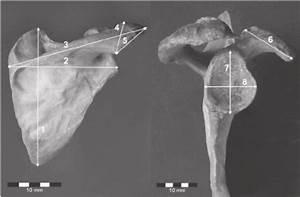 Osteometric Measurements Of The Scapula  1  U2014 Morphological Length  2  U2014