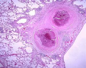 File:Histoplasmosis.jpg - Wikimedia Commons
