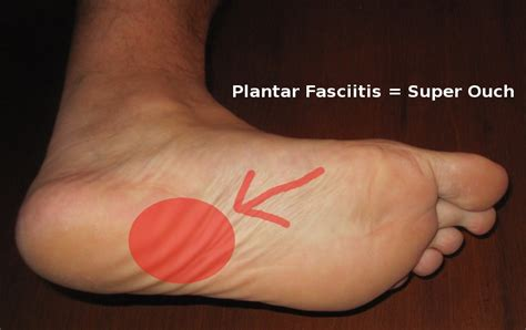 planters fasciitis treatment pursuit physical therapy what is plantar fasciitis