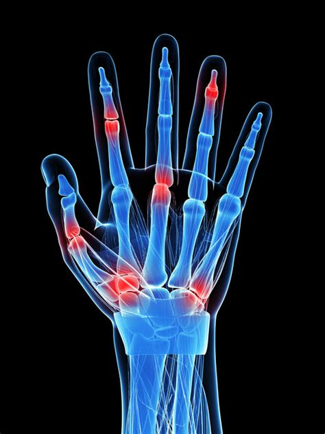 What is rheumatoid arthritis caused by