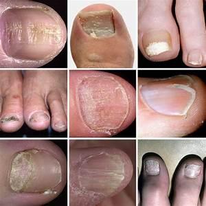 Как лечит грибок ногтя на большом пальце ноги