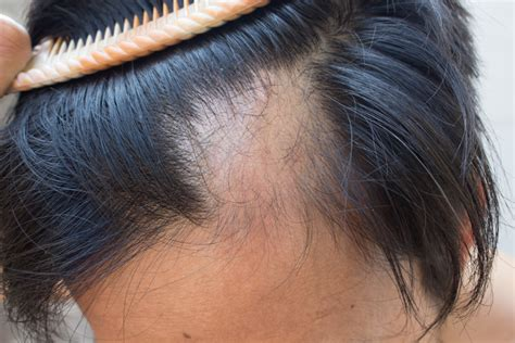 Scalp Cooling for Alopecia Among Patients With Breast