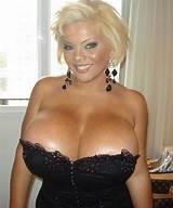 Big breast implant photos